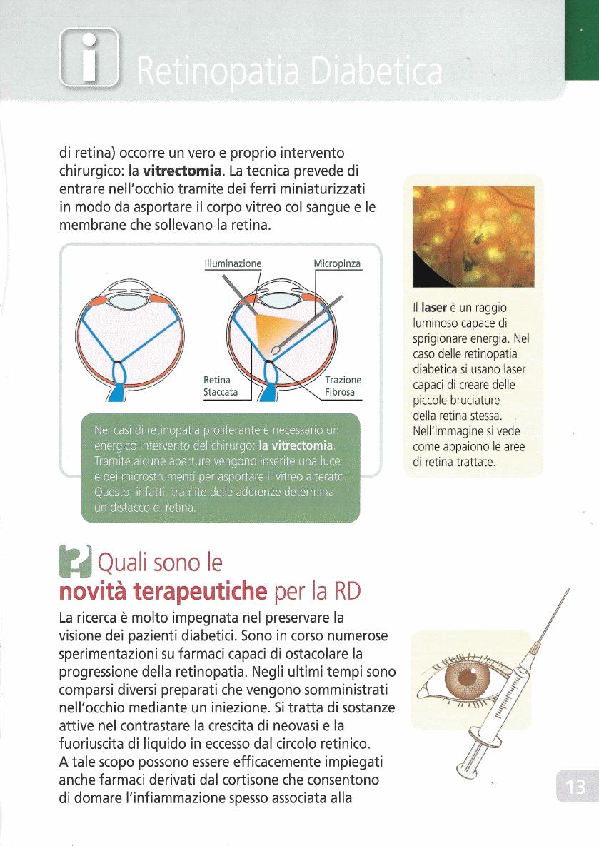 retinopatiadiabetica13